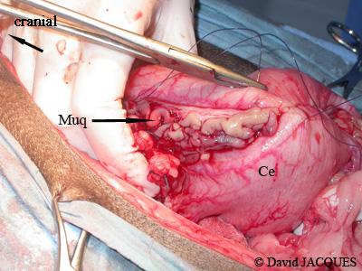 gastrectomie14