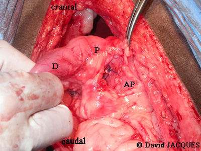 gastrectomie6