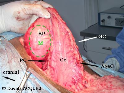 gastrectomie8