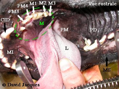 hemimandibulectomie-1