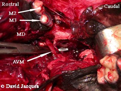 hemimandibulectomie-10
