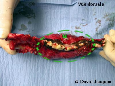 hemimandibulectomie-19