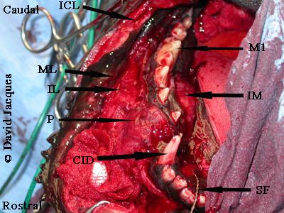 hemimandibulectomie-8