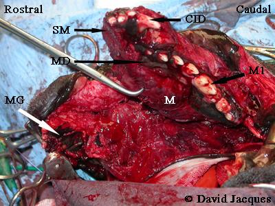 hemimandibulectomie-9