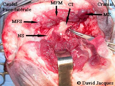 hemipelvectomie-10